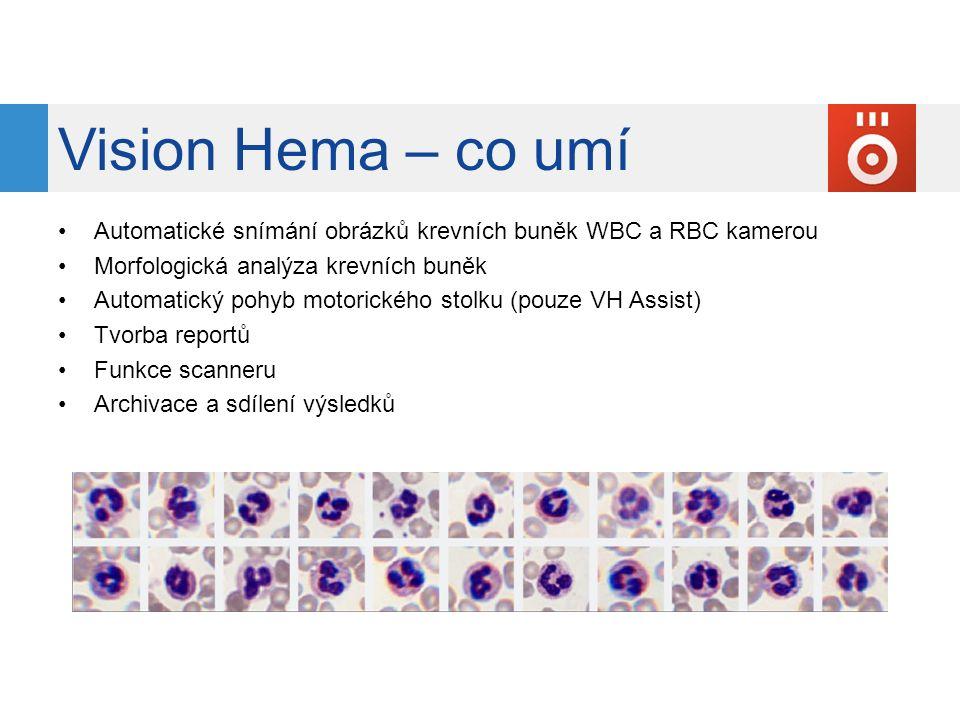 Vision Hema – co umí Automatické snímání obrázků krevních buněk WBC a RBC kamerou. Morfologická analýza krevních buněk.