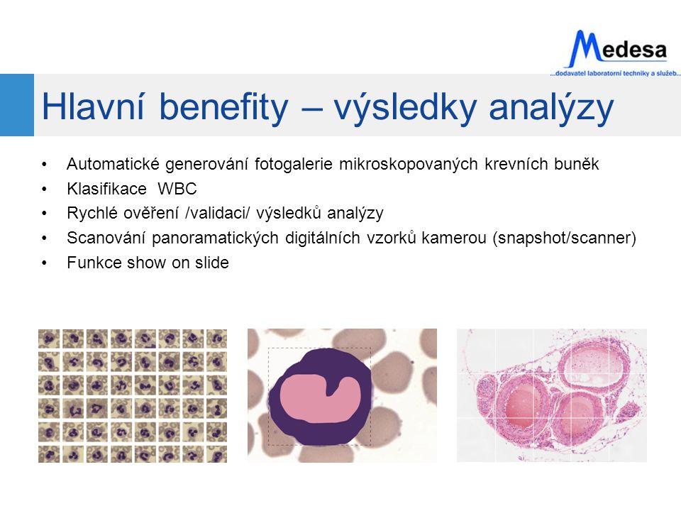 Hlavní benefity – výsledky analýzy