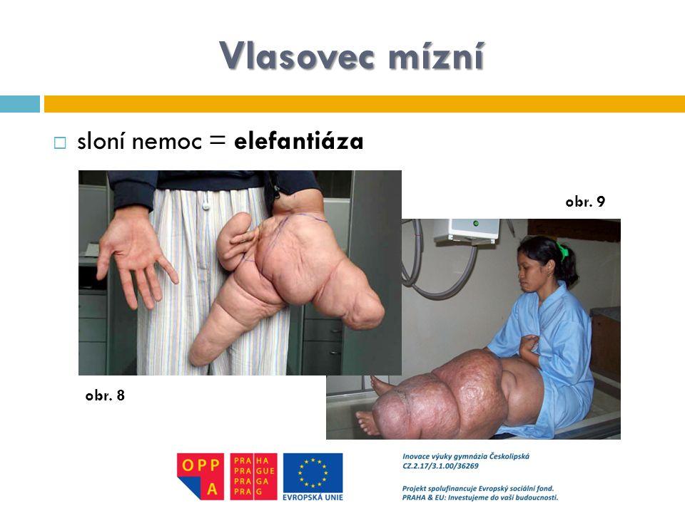 Vlasovec mízní sloní nemoc = elefantiáza obr. 9 obr. 8