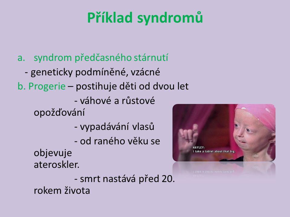Příklad syndromů syndrom předčasného stárnutí