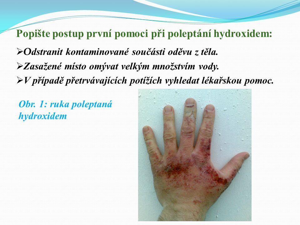 Popište postup první pomoci při poleptání hydroxidem: