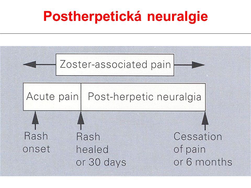 Postherpetická neuralgie