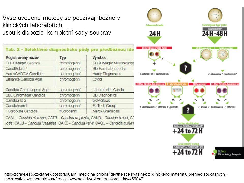 Výše uvedené metody se používají běžně v klinických laboratořích