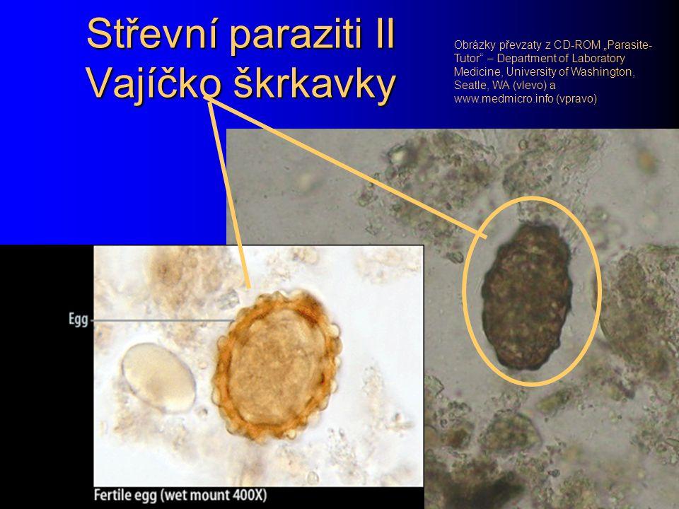 Střevní paraziti II Vajíčko škrkavky