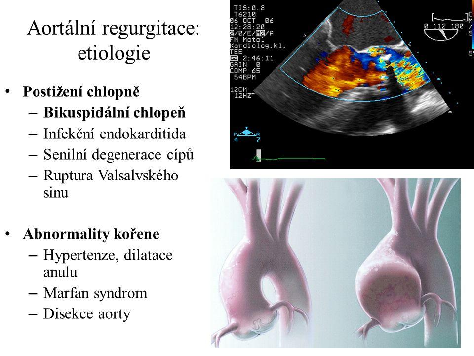 Aortální regurgitace: etiologie