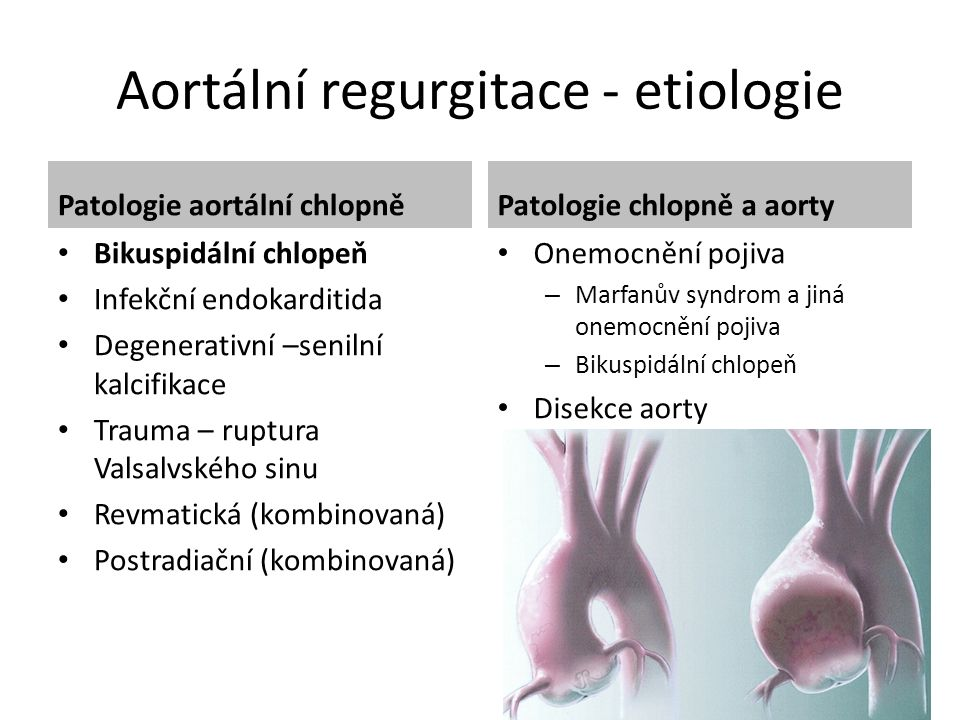 Aortální regurgitace - etiologie