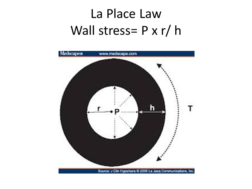 La Place Law Wall stress= P x r/ h