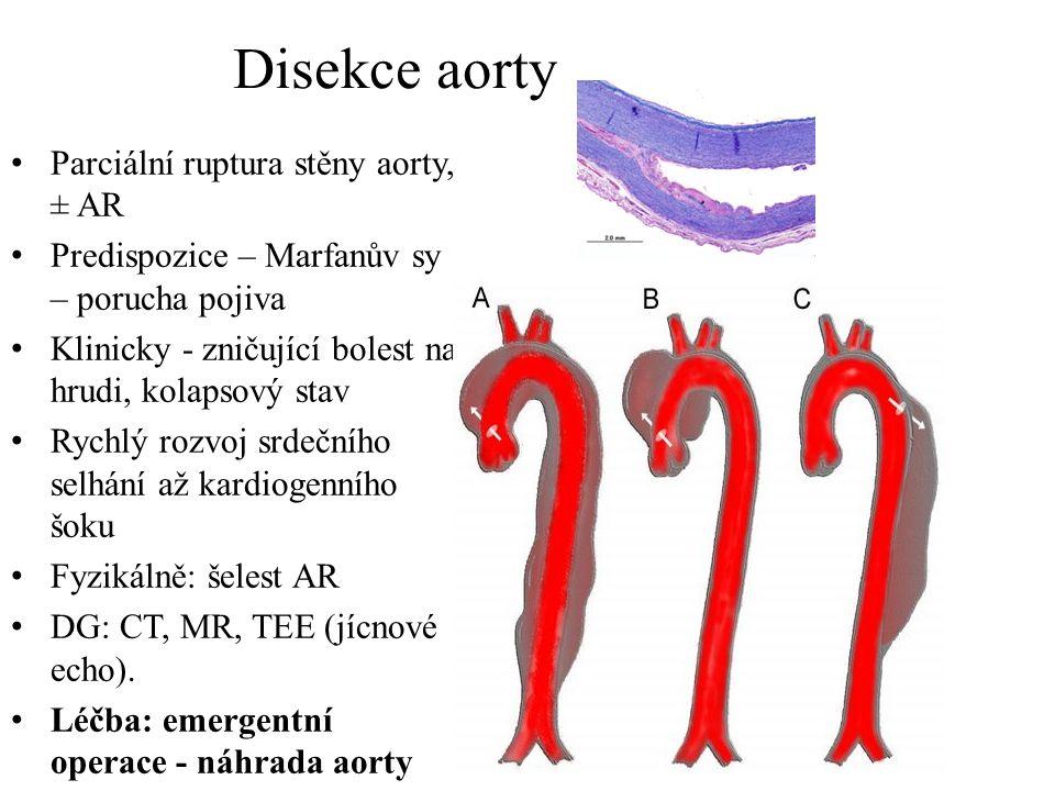 Disekce aorty Parciální ruptura stěny aorty, ± AR