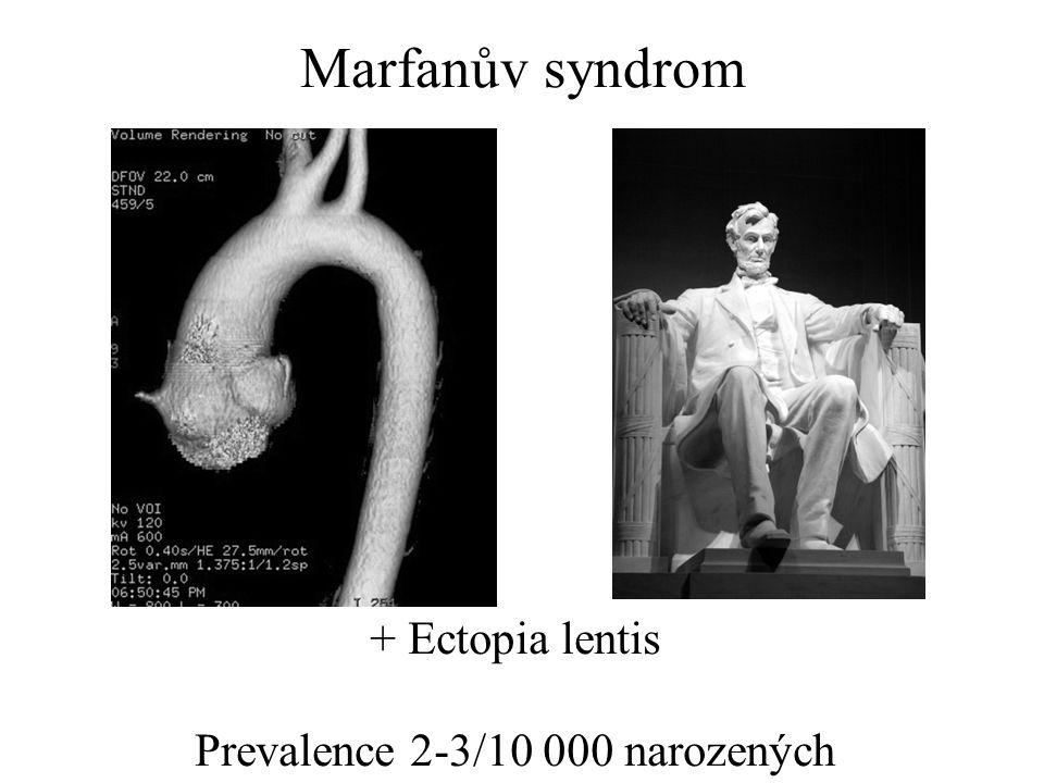 Prevalence 2-3/10 000 narozených