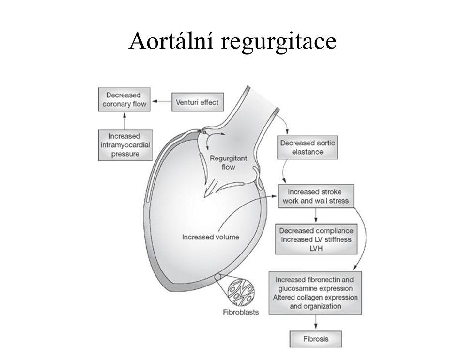 Aortální regurgitace