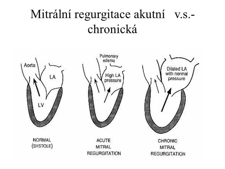 Mitrální regurgitace akutní v.s.- chronická