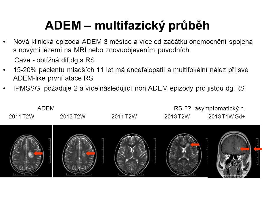 ADEM – multifazický průběh