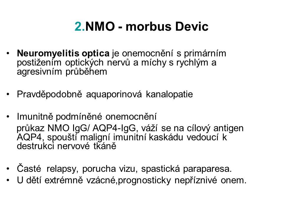2.NMO - morbus Devic Neuromyelitis optica je onemocnění s primárním postižením optických nervů a míchy s rychlým a agresivním průběhem.