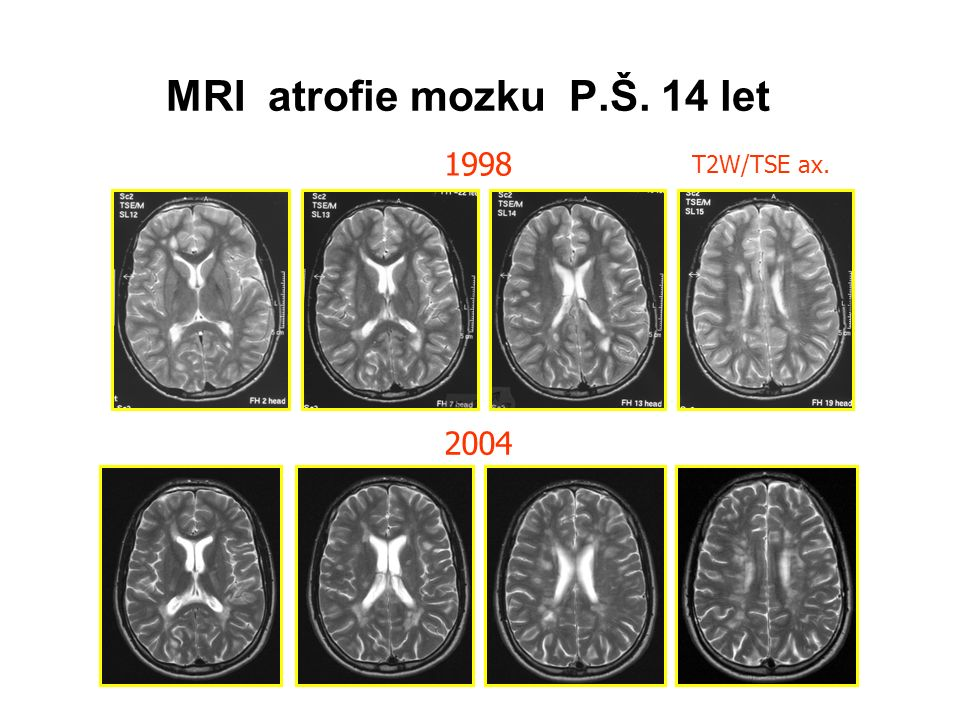 MRI atrofie mozku P.Š. 14 let