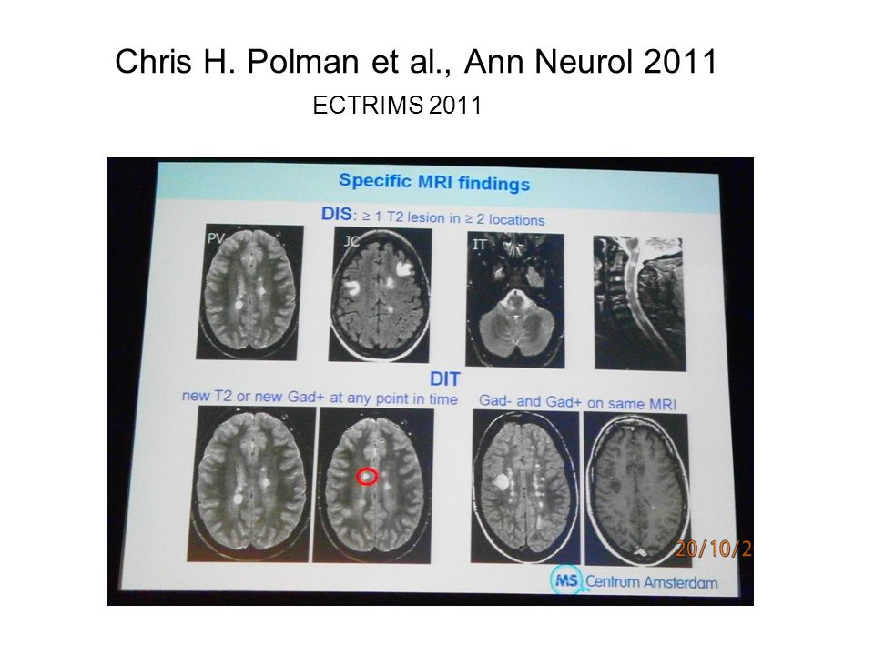 Chris H. Polman et al., Ann Neurol 2011 ECTRIMS 2011