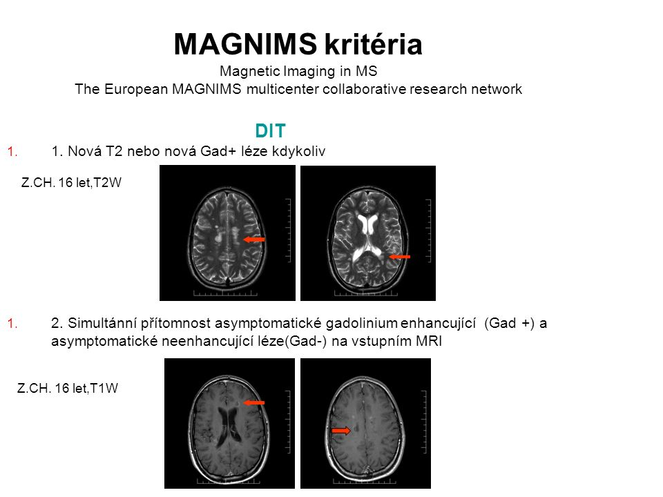 MAGNIMS kritéria Magnetic Imaging in MS The European MAGNIMS multicenter collaborative research network