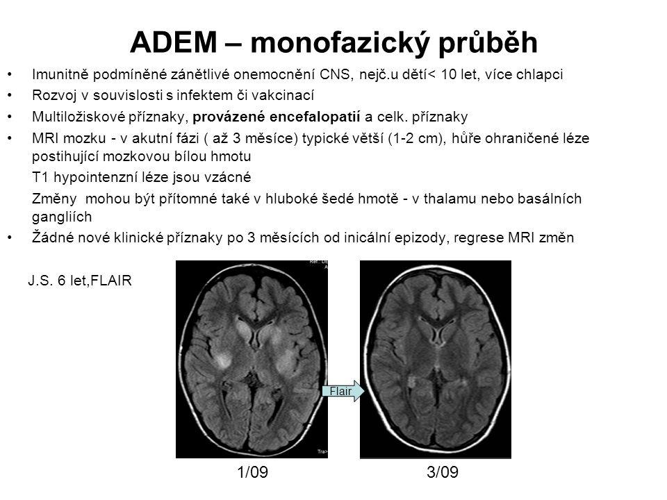 ADEM – monofazický průběh
