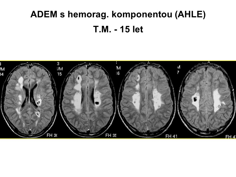 ADEM s hemorag. komponentou (AHLE) T.M. - 15 let