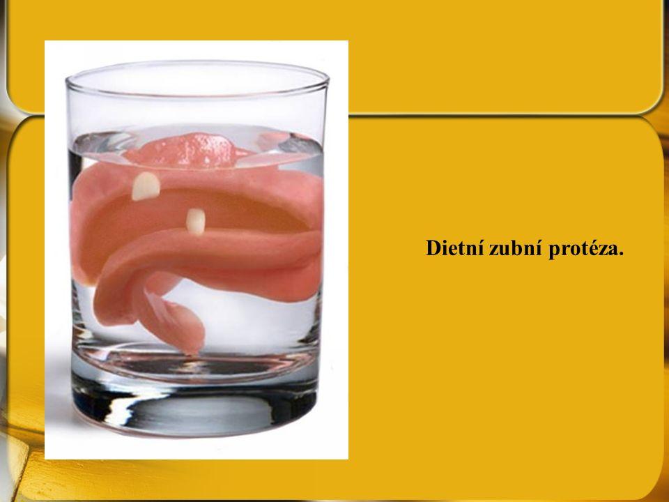 Dietní zubní protéza.