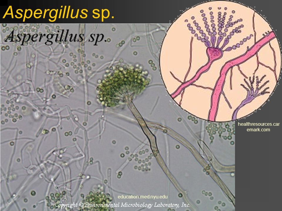 Aspergillus sp. healthresources.caremark.com education.med.nyu.edu