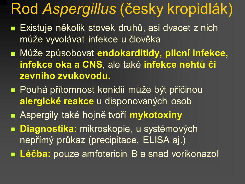 Rod Aspergillus (česky kropidlák)