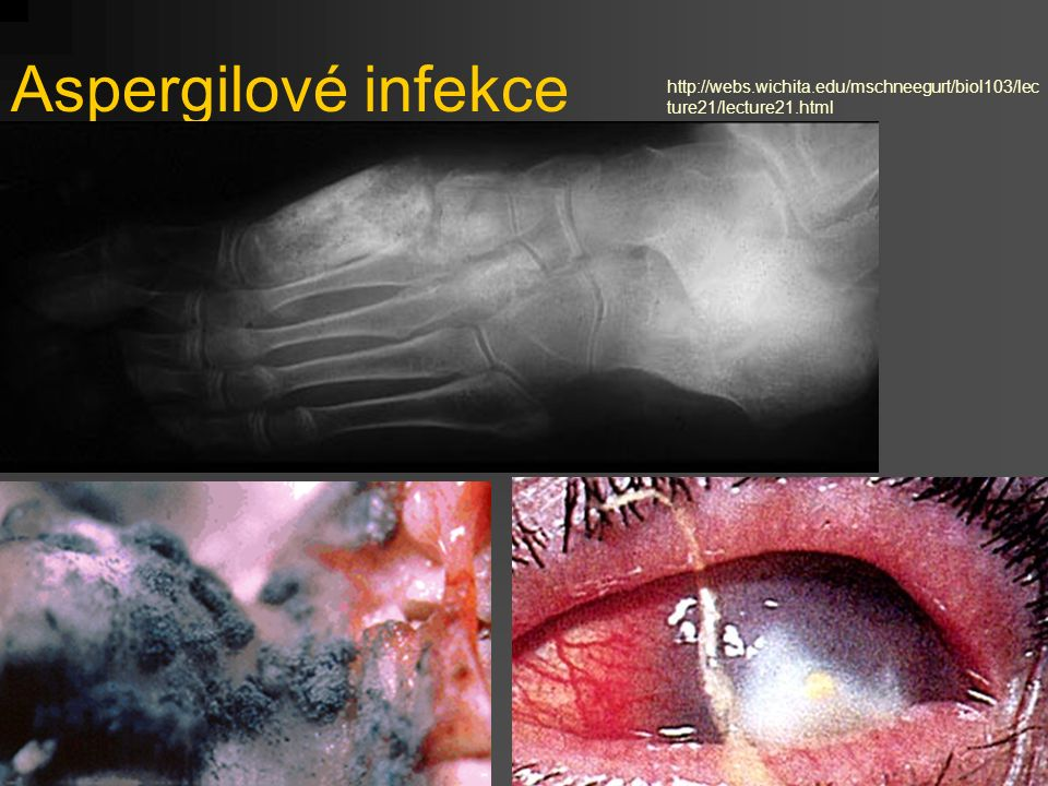 Aspergilové infekce http://webs.wichita.edu/mschneegurt/biol103/lecture21/lecture21.html
