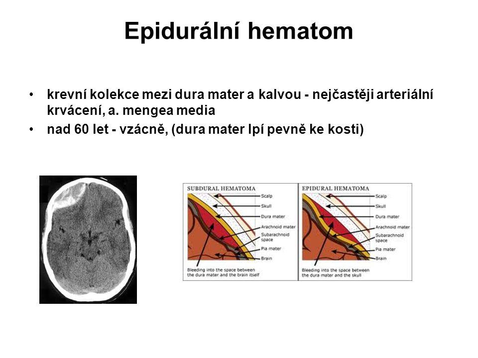 Epidurální hematom krevní kolekce mezi dura mater a kalvou - nejčastěji arteriální krvácení, a. mengea media.