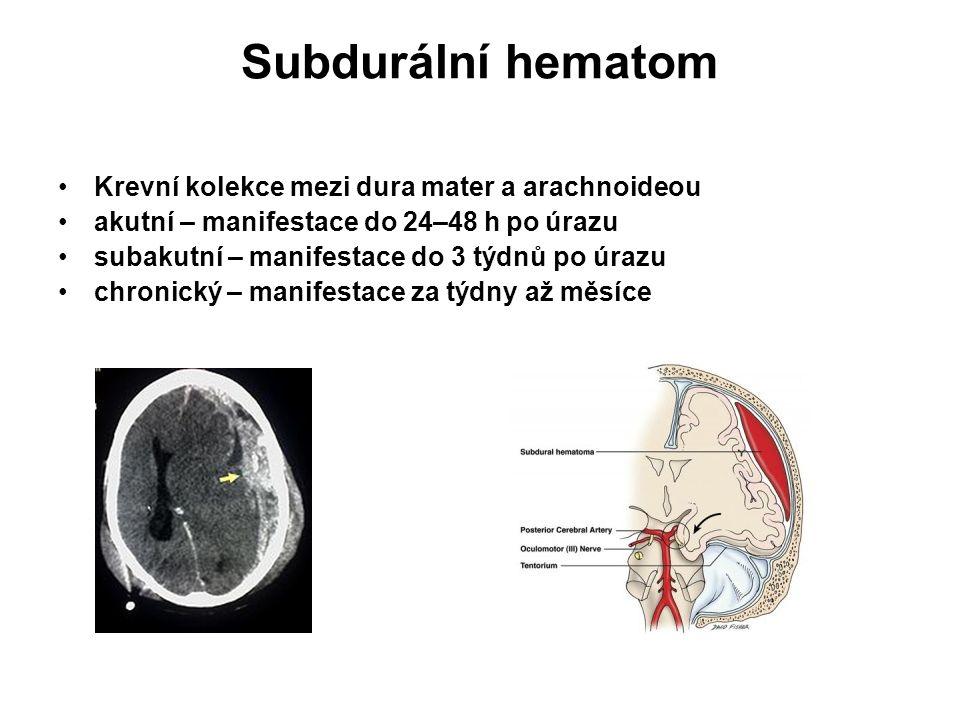 Subdurální hematom Krevní kolekce mezi dura mater a arachnoideou