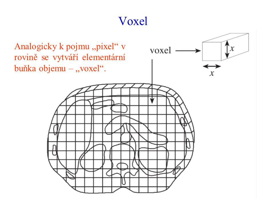 """Voxel Analogicky k pojmu """"pixel v rovině se vytváří elementární buňka objemu – """"voxel ."""