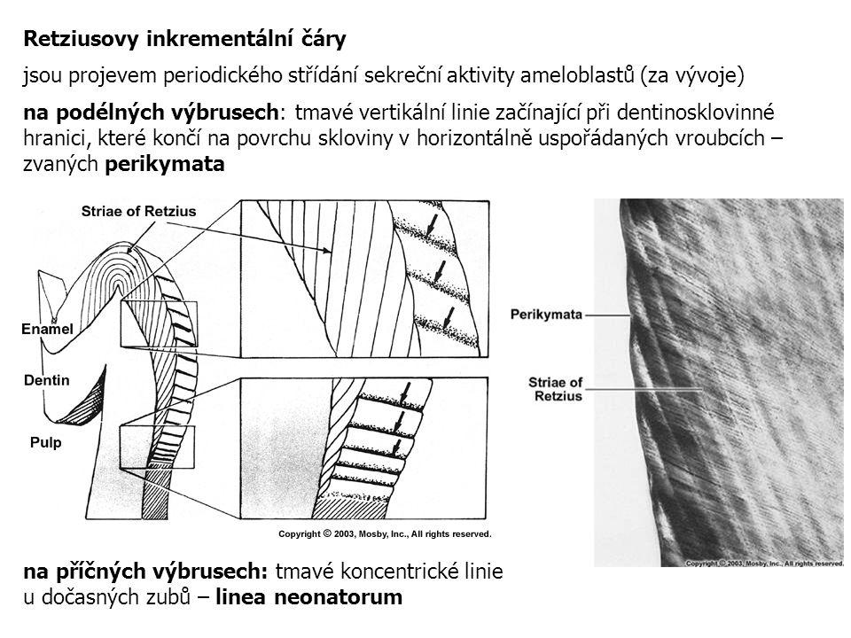 Retziusovy inkrementální čáry