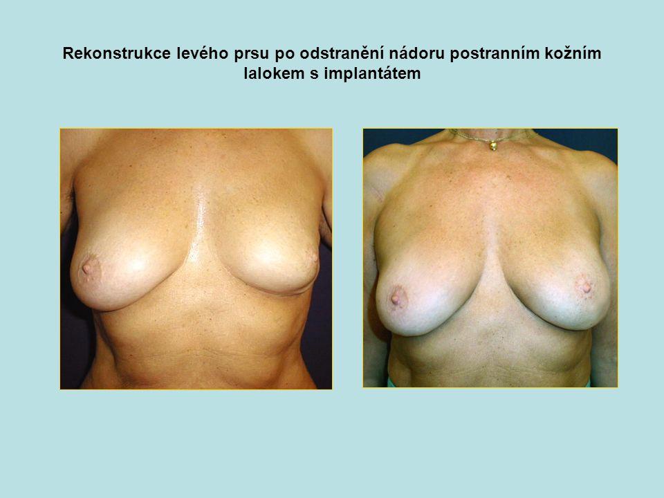 Rekonstrukce levého prsu po odstranění nádoru postranním kožním