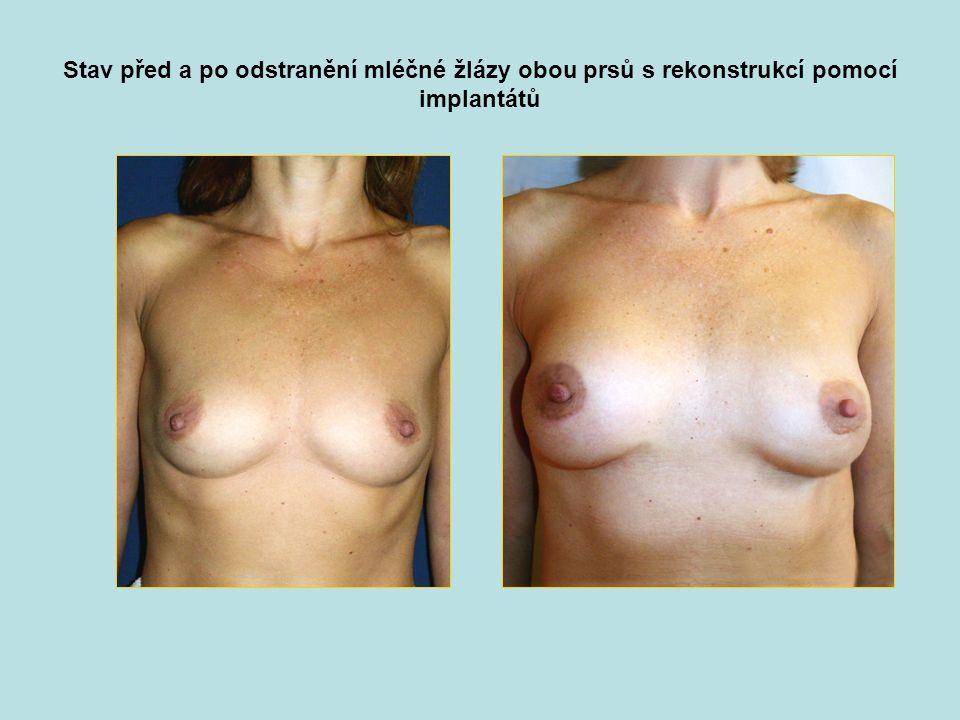 Stav před a po odstranění mléčné žlázy obou prsů s rekonstrukcí pomocí