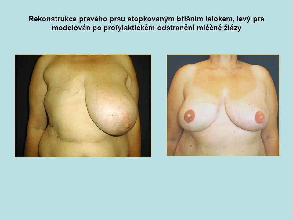 Rekonstrukce pravého prsu stopkovaným břišním lalokem, levý prs