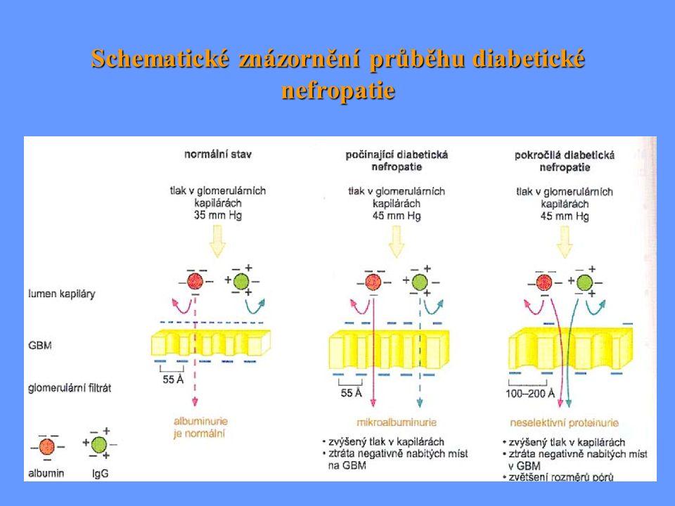 Schematické znázornění průběhu diabetické nefropatie