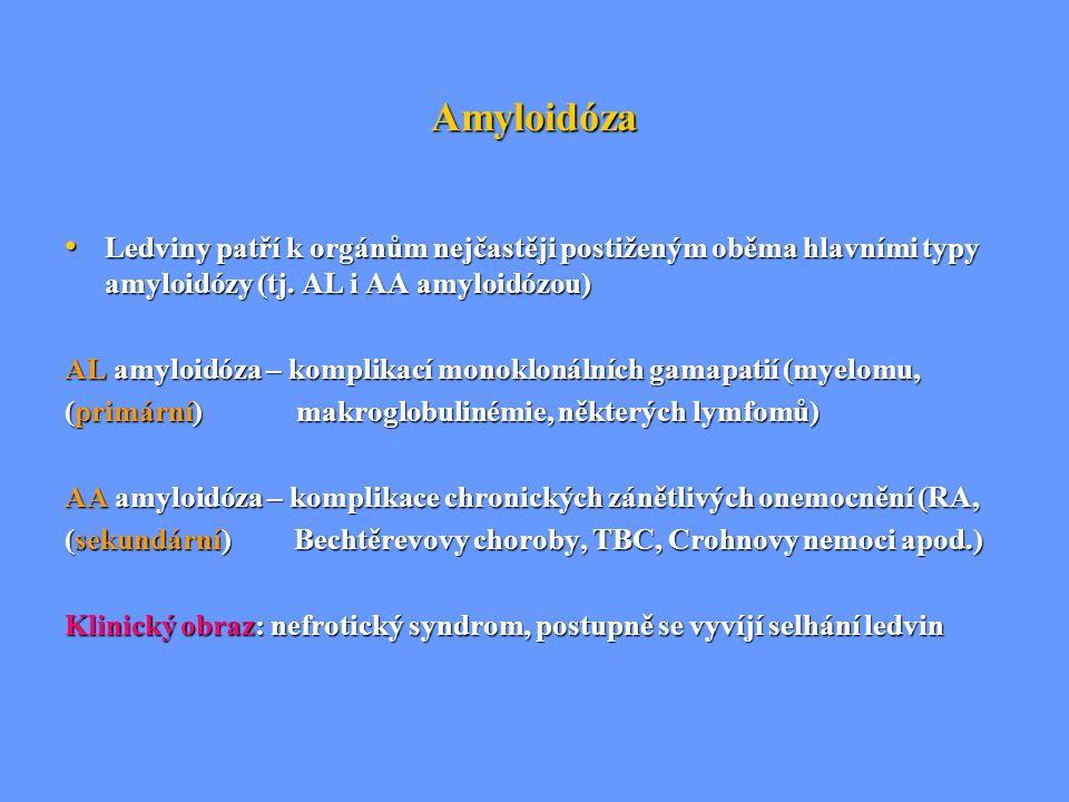 Amyloidóza Ledviny patří k orgánům nejčastěji postiženým oběma hlavními typy amyloidózy (tj. AL i AA amyloidózou)