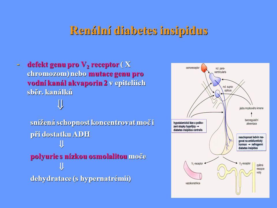 Renální diabetes insipidus