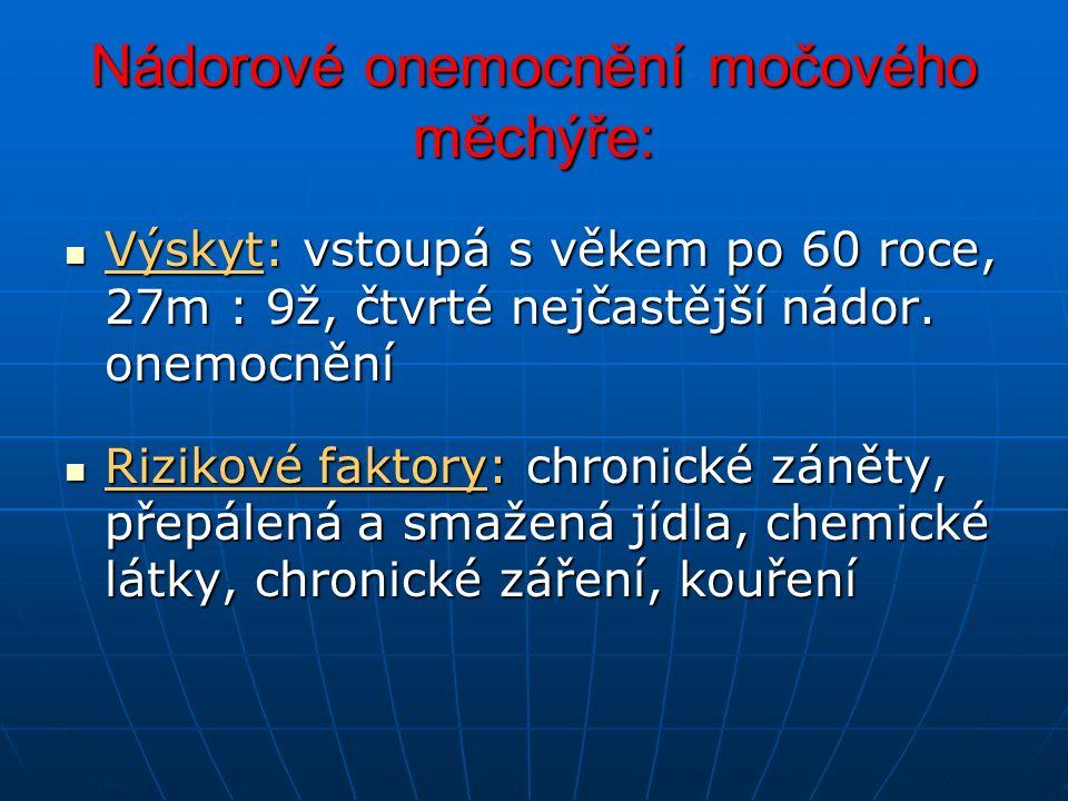 Nádorové onemocnění močového měchýře: