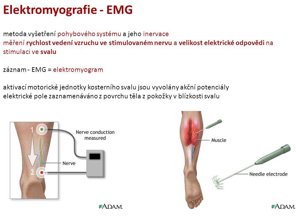Elektromyografie - EMG