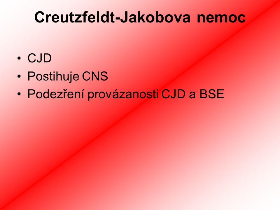 Creutzfeldt-Jakobova nemoc
