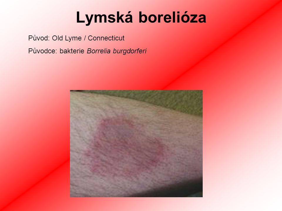 Lymská borelióza Původ: Old Lyme / Connecticut