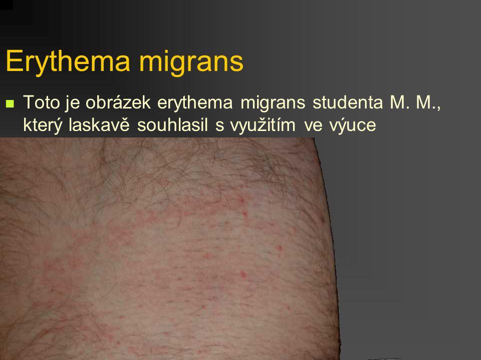 Erythema migrans Toto je obrázek erythema migrans studenta M. M., který laskavě souhlasil s využitím ve výuce.