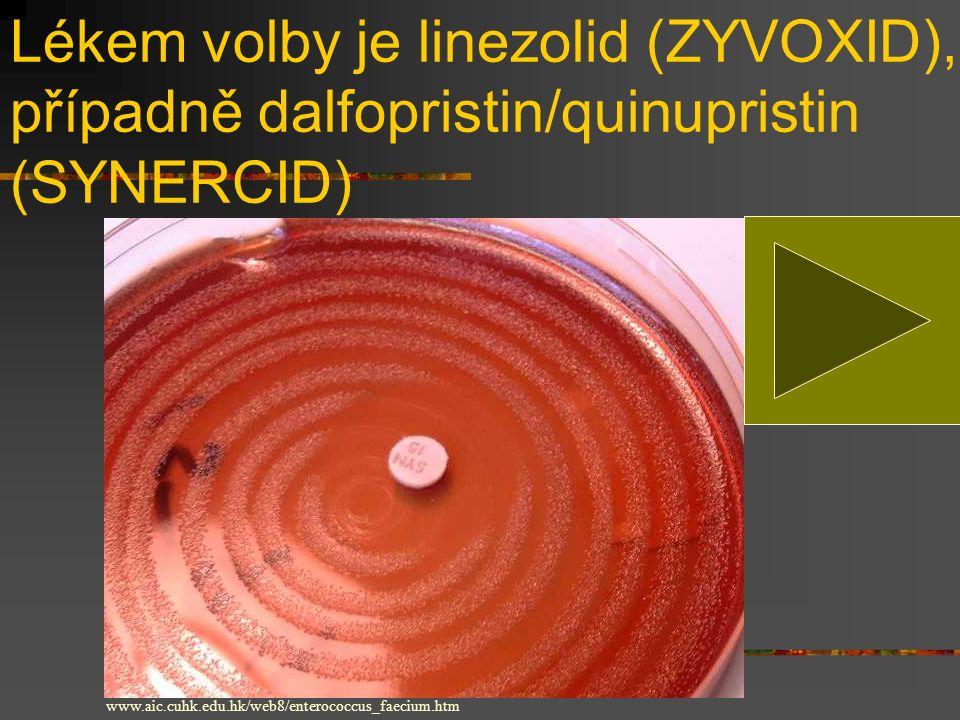 Lékem volby je linezolid (ZYVOXID), případně dalfopristin/quinupristin (SYNERCID)