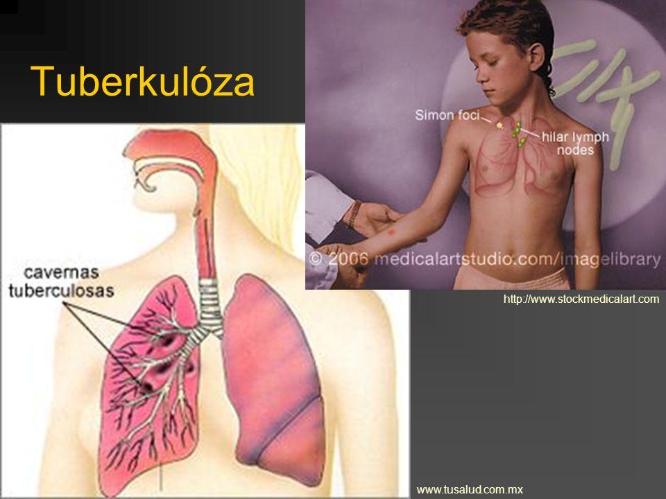 Tuberkulóza http://www.stockmedicalart.com www.tusalud.com.mx