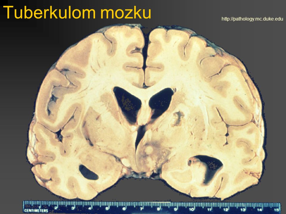 Tuberkulom mozku http://pathology.mc.duke.edu