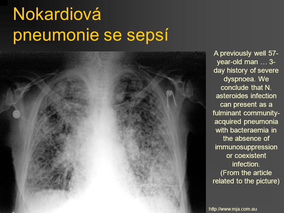 Nokardiová pneumonie se sepsí