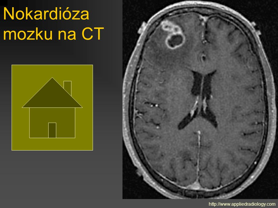 Nokardióza mozku na CT http://www.appliedradiology.com