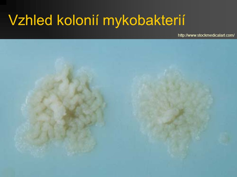 Vzhled kolonií mykobakterií