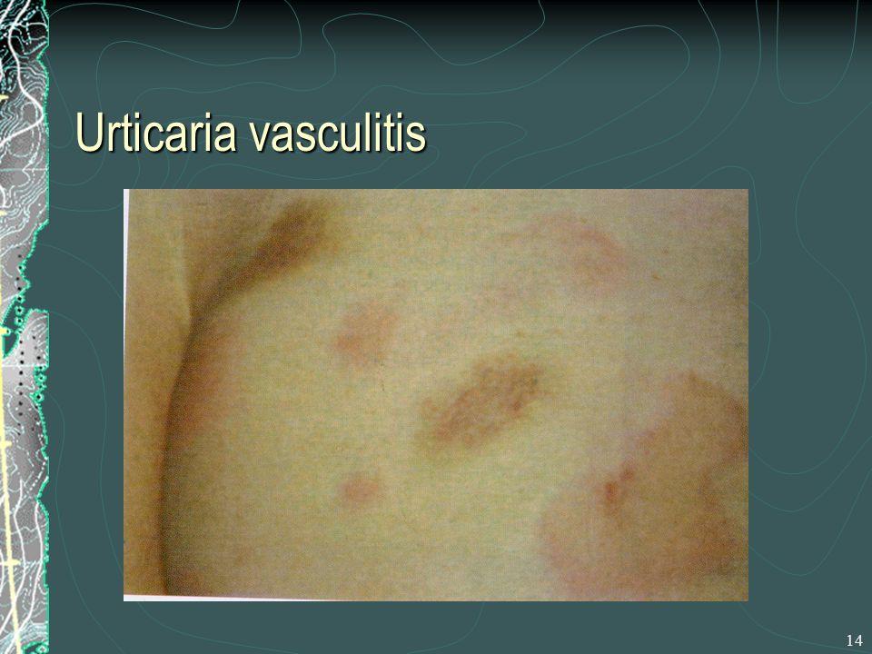 Urticaria vasculitis