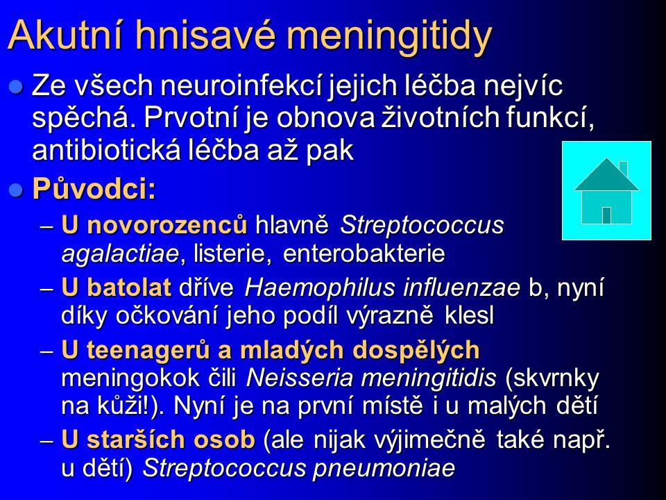 Akutní hnisavé meningitidy