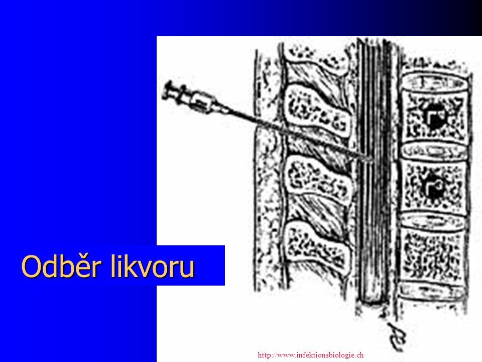 Odběr likvoru http://www.infektionsbiologie.ch